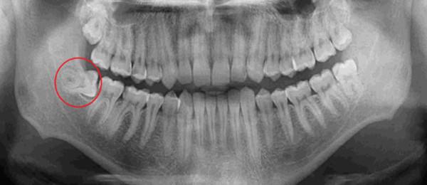 Przykład zęba zatrzymanego
