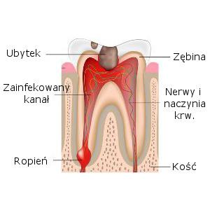 Ząb z głębokim ubytkiem tkanek, sięgającym do miazgi (unerwionego centrum zęba)