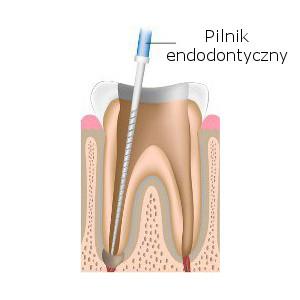 Pilniki endodontyczne w leczeniu kanałowym