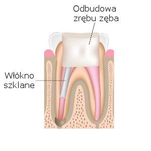 Odbudowa zęba po leczeniu kanałowym