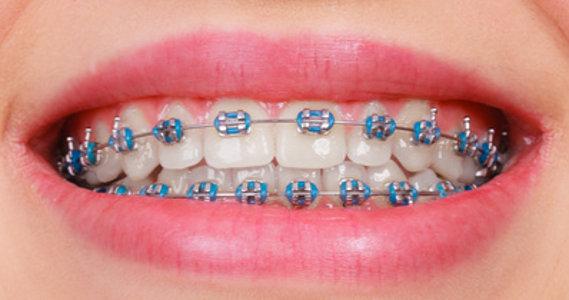 Aparat ortodontyczny metalowy