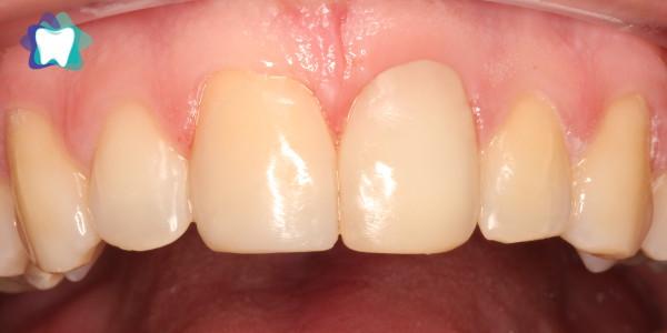 Licówka kompozytowa Ząb Przedni