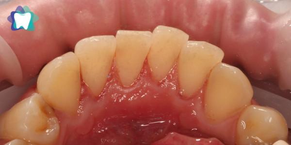 Czyszczenie zębów Po