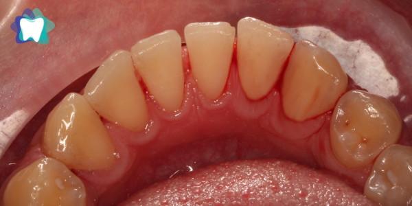 Czyszczenie zębów Efekt Po