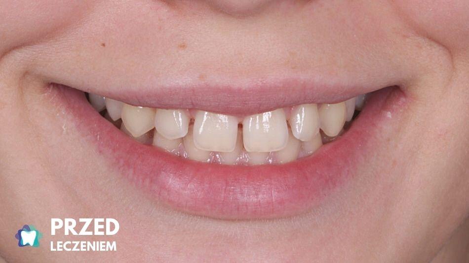 Przerwa między zębami
