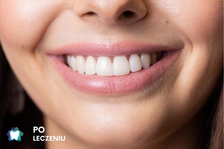 Flow Injection Dentysta Przemiana